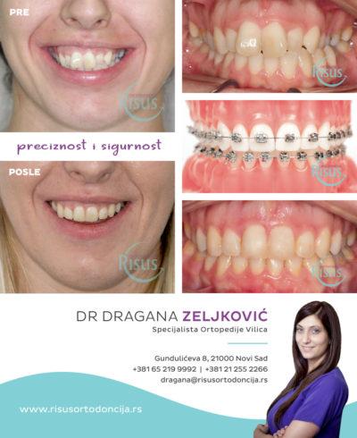 fiksna proteza ortodoncija novi sad